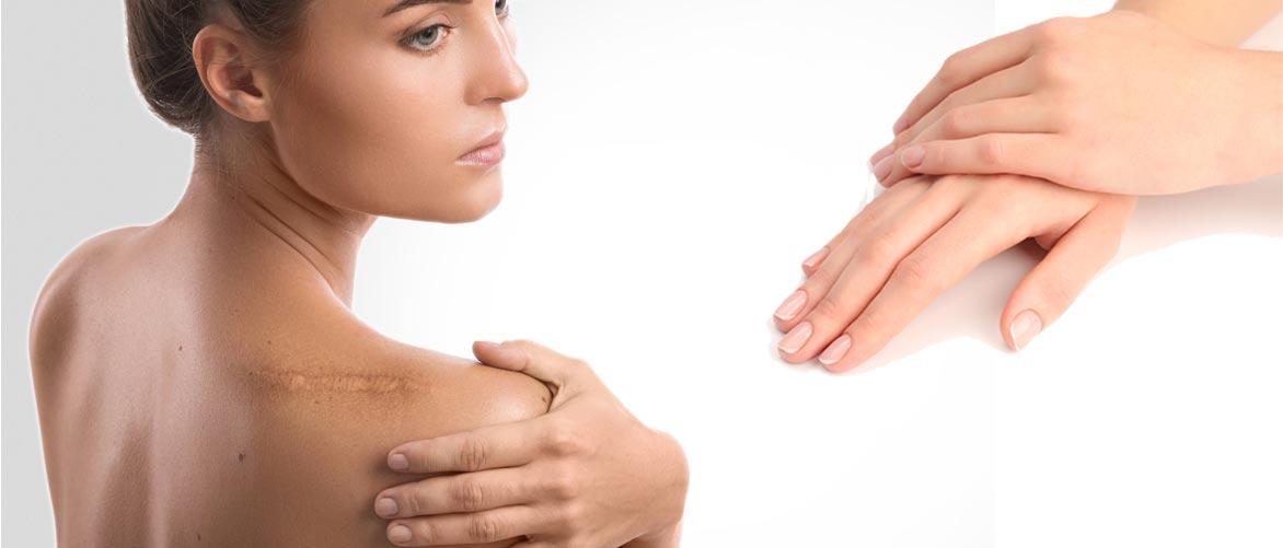 Chirurgie réparatrice / Chirurgie de la main