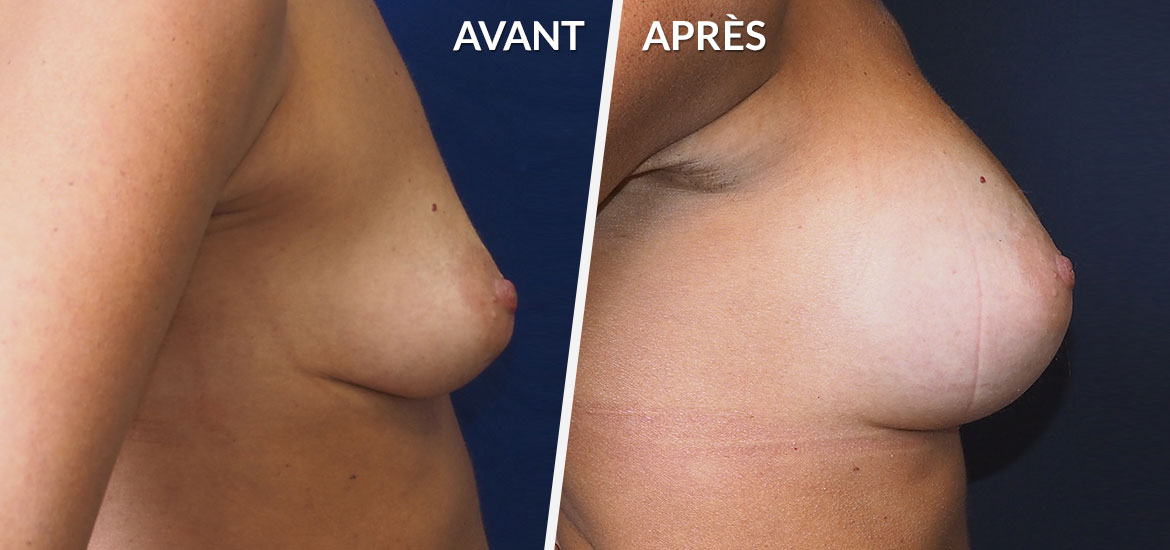 Exemple Augmentation mammaire 2