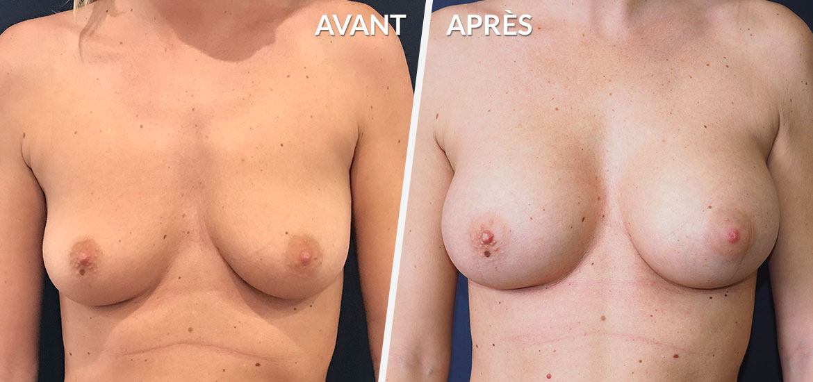 Exemple Augmentation mammaire 3