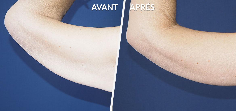 Exemple Dermolipectomie des bras & cuisses 2