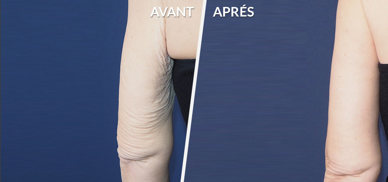 Exemple Dermolipectomie des bras & cuisses 4