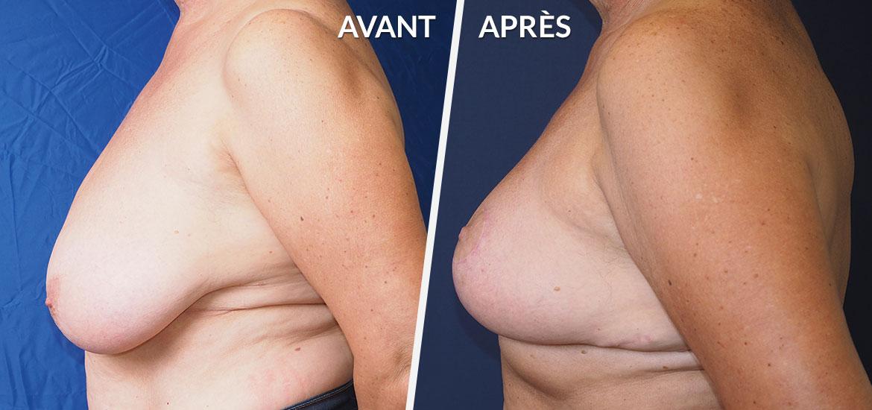 Exemple Réduction mammaire 1