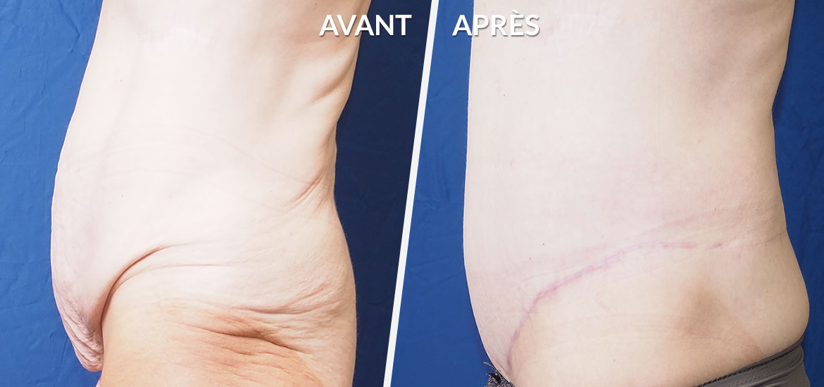 Exemple Bodylift / Dermolipectomie circulaire 1
