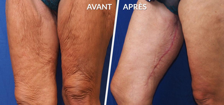 Exemple Dermolipectomie des bras & cuisses 5