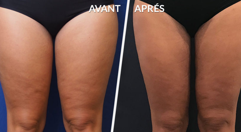 Lipoaspiration cuisses