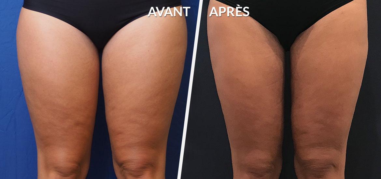 Exemple Lipoaspiration / Liposculture 2